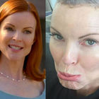 Marcia Cross di Desperate Housewives: «Così ho perso i capelli lottando contro il cancro»